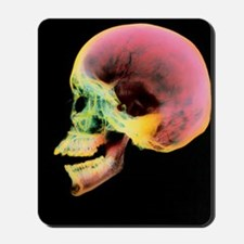 Coloured X-ray of a human skull seen fro Mousepad