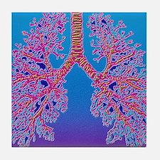 Computer art of human lung trachea Tile Coaster