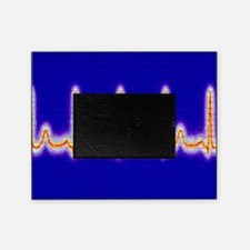 Computer artwork of healthy ECG trac Picture Frame