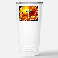 Coronal slice through a healthy Travel Mug