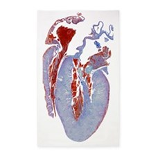Dissected heart, light micrograph 3'x5' Area Rug