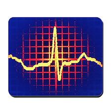 ECG trace Mousepad