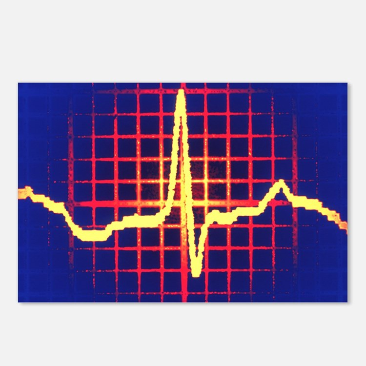 ECG trace Postcards (Package of 8)