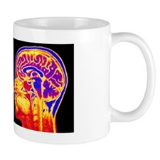 F/col MRI mid-sagittsal scan of normal  Small Mug