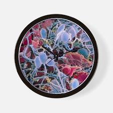 False-colour SEM of sperm on a human eg Wall Clock