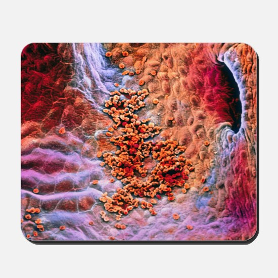 False-colour SEM early clot formation in Mousepad