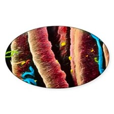 False-colour SEM of skeletal muscle Decal