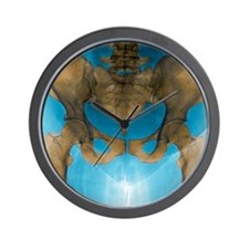 Female pelvis, X-ray Wall Clock