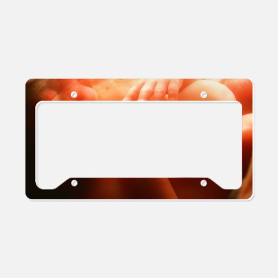Five month old foetus License Plate Holder