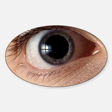 Front view of human eye with dilate Decal
