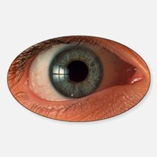 Front view of human eye Decal