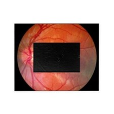 Fundus camera image of a normal reti Picture Frame