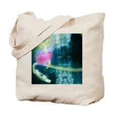 Gall bladder and bile ducts, X-ray Tote Bag