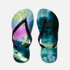 Gall bladder and bile ducts, X-ray Flip Flops