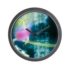 Gall bladder and bile ducts, X-ray Wall Clock