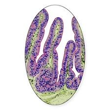 Gall bladder surface, light microgr Decal