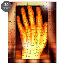 Hand, X-ray Puzzle