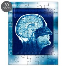 Healthy brain, MRI scan Puzzle