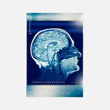 Healthy brain, MRI scan Rectangle Magnet