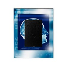 Healthy brain, MRI scan Picture Frame