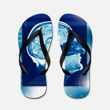 Healthy brain, MRI scan Flip Flops