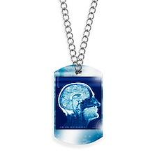 Healthy brain, MRI scan Dog Tags