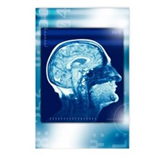 Healthy brain, MRI scan Postcards (Package of 8)