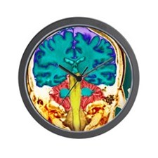 Healthy brain, MRI scan Wall Clock