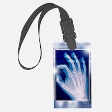 Healthy hand, X-ray Luggage Tag