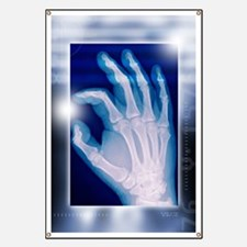 Healthy hand, X-ray Banner