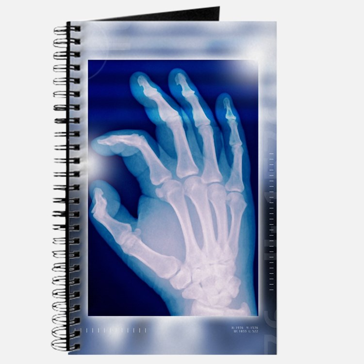 Healthy hand, X-ray Journal