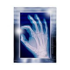 Healthy hand, X-ray Twin Duvet