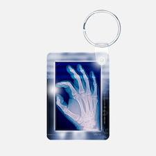 Healthy hand, X-ray Keychains