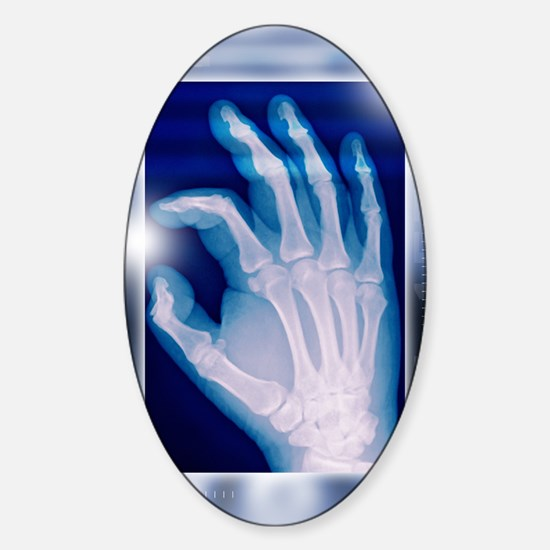 Healthy hand, X-ray Sticker (Oval)