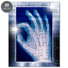 Healthy hand, X-ray Puzzle