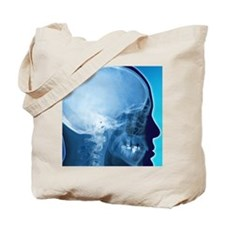 Healthy skull, coloured X-ray Tote Bag