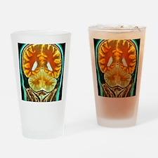 Healthy brain, MRI scan Drinking Glass