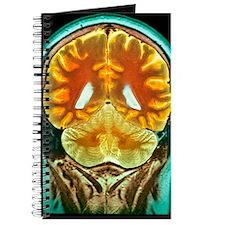 Healthy brain, MRI scan Journal