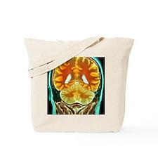 Healthy brain, MRI scan Tote Bag