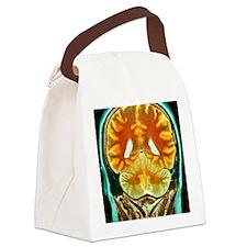 Healthy brain, MRI scan Canvas Lunch Bag