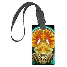 Healthy brain, MRI scan Luggage Tag