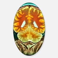 Healthy brain, MRI scan Decal