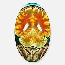 Healthy brain, MRI scan Sticker (Oval)