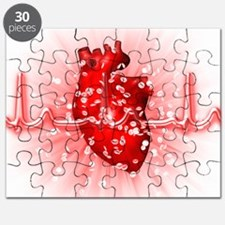 Heart and ECG Puzzle