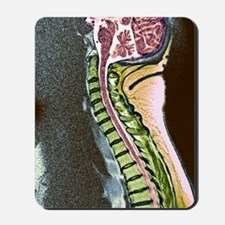 Healthy spine Mousepad