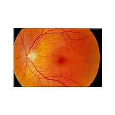 Healthy retina Rectangle Magnet