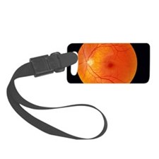 Healthy retina Luggage Tag