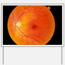 Healthy retina Yard Sign