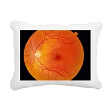 Healthy retina Rectangular Canvas Pillow