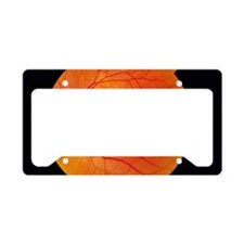 Healthy retina License Plate Holder